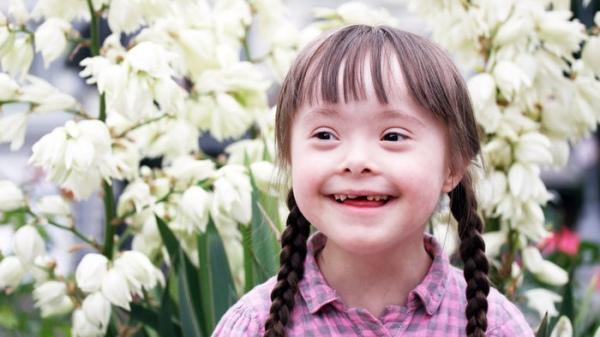 """Результат пошуку зображень за запитом """"дітей з синдромом Дауна"""""""